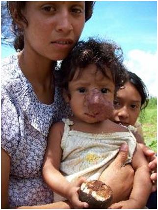 ENFER22 49 original - 10 enfermedades provocadas por el glifosato. 17 países han prohibido o restringido el uso de este herbicida carcinógeno.