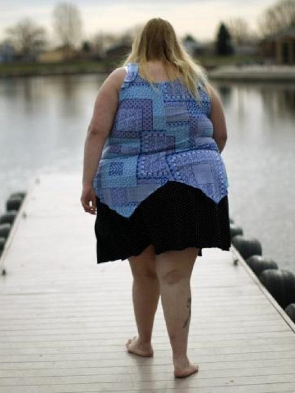 Toma vitamina D y dale esquinazo a la obesidad