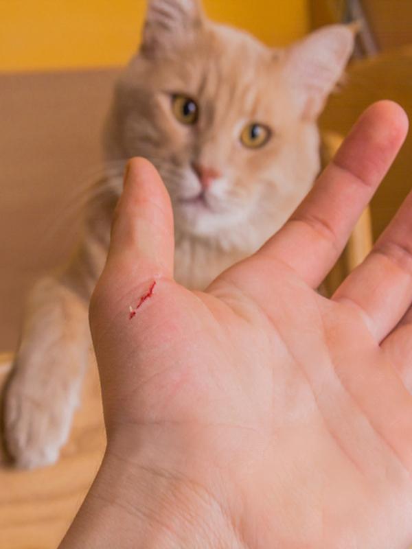 Claves sobre la enfermedad por arañazo de gato