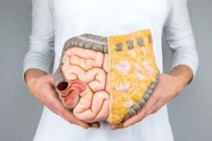 Todo lo que necesitas saber sobre el papel de la dieta para evitar el cáncer colorrectal